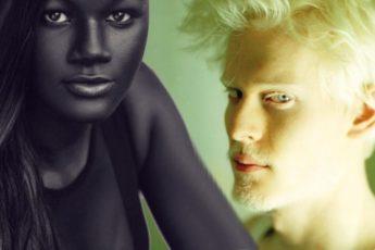 У этих людей самый уникальный цвет кожи