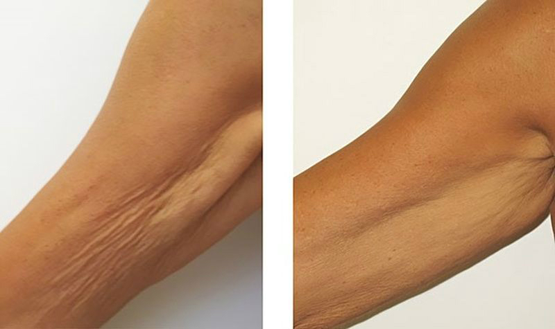 дряблая кожа тела